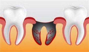 Выходит сгусток после удаления зуба. Что делать если после удаления зуба в лунке что-то белое